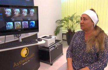 Hautanalyse mit VISIA DELUXE und Schönheitsspezialistin Ines Jädicke