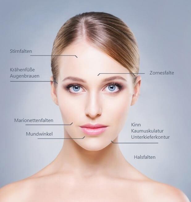 Welche Bereiche lassen sich mit Botox® gut behandeln?