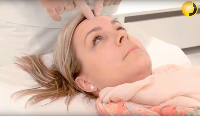 Video Thumb - Faltenbehandlung mit Botox