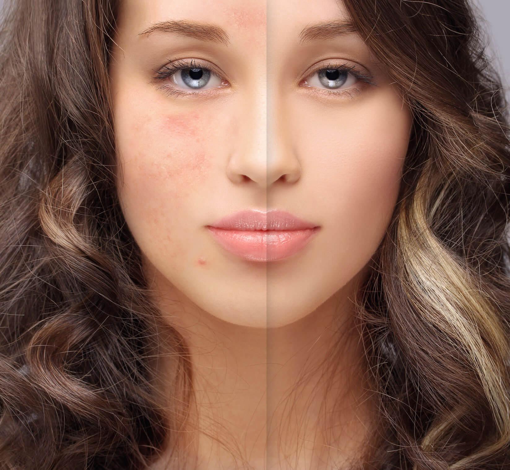 Pure Skin Professional - unreine Haut behandlung in Berlin