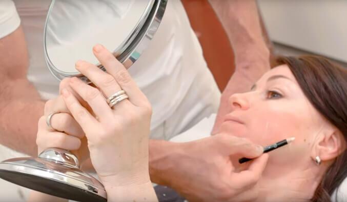 Video Thumb - Fadenlifting Gesicht und Wangen