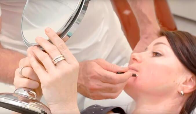 Video Thumb - Fadenlifting zur Konturstraffung