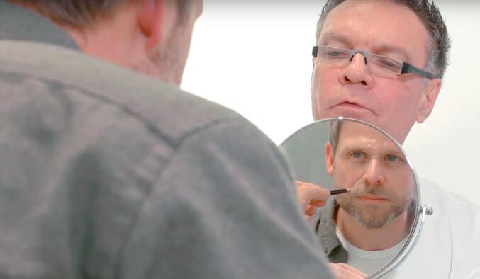 Video Thumb - Faltenunterspritzung Nasolabialfalten und Wangen
