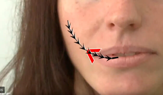 Video Thumb - Mundwinkel Lifting